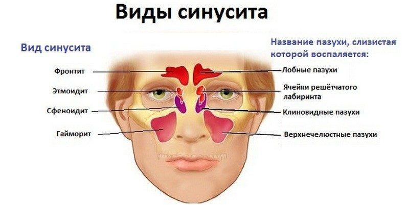 Синусит вызывает заложенность носа