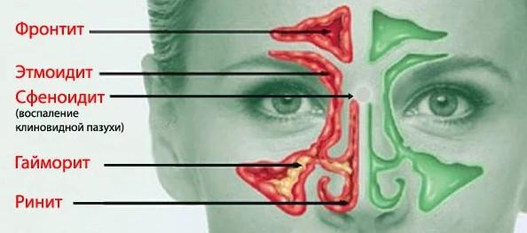 Какие существуют заболевания дыхательных путей