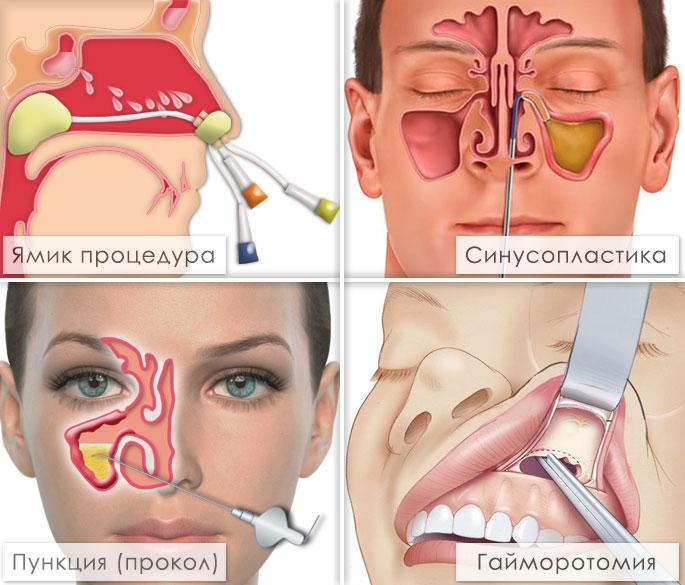 Dvuhstoronnij_ekssudativnij_gajmorit_simptomi-_priznaki-_lechenie_7