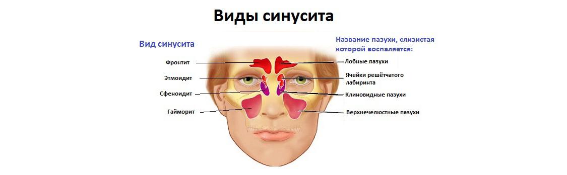 vidy-sinusitov-i-pazuh
