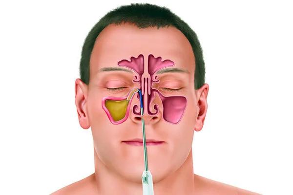 Метод эндоскопической микрохирургии при лечении гайморитов